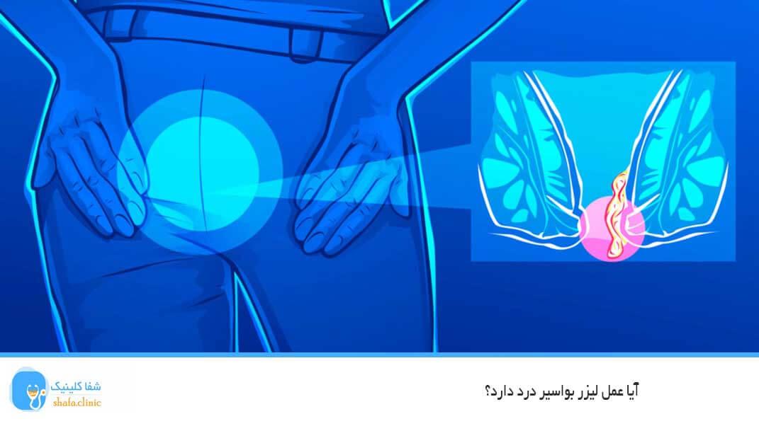 آیا عمل لیزر بواسیر درد دارد؟