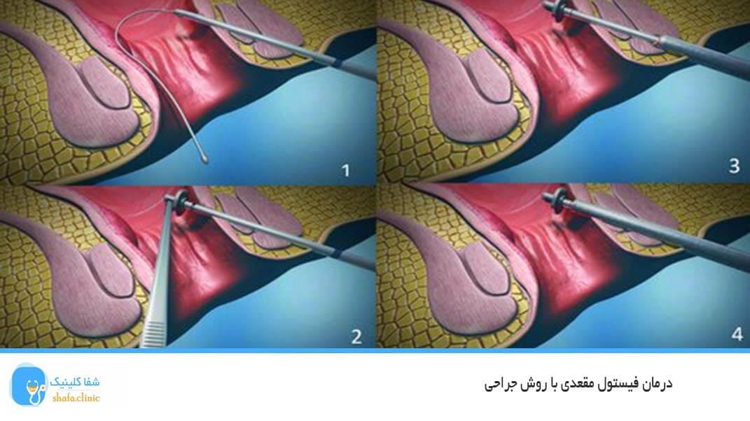 درمان فیستول مقعدی با روش جراحی
