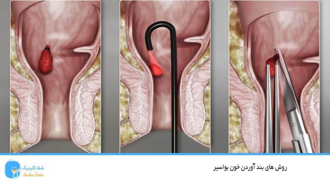 روش های بند آوردن خون بواسیر