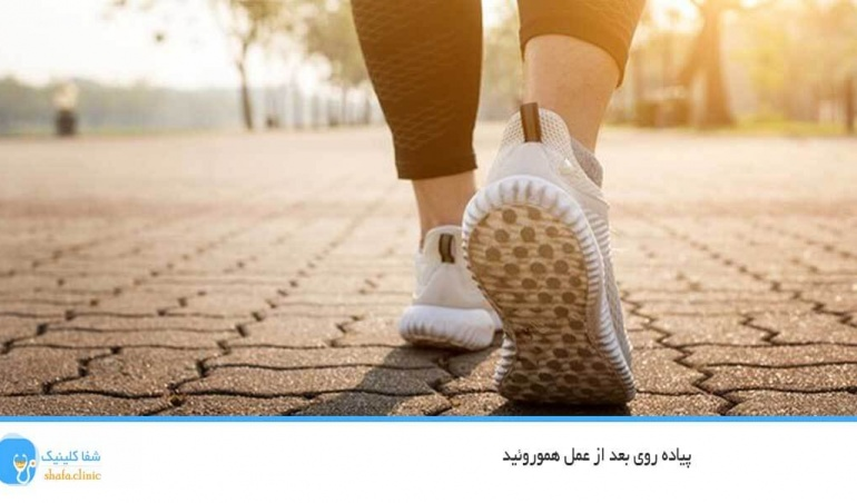 پیاده روی بعد از عمل هموروئید