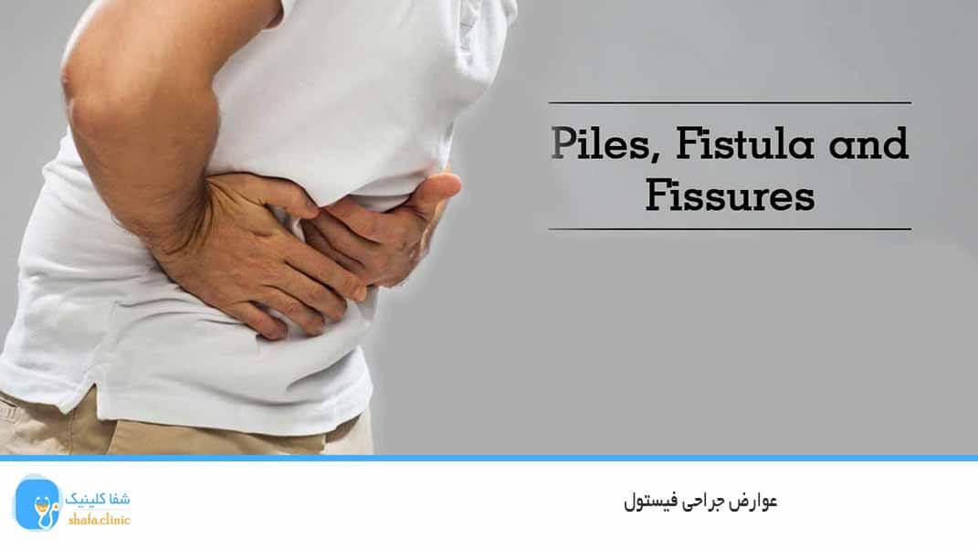 عوارض جراحی فیستول