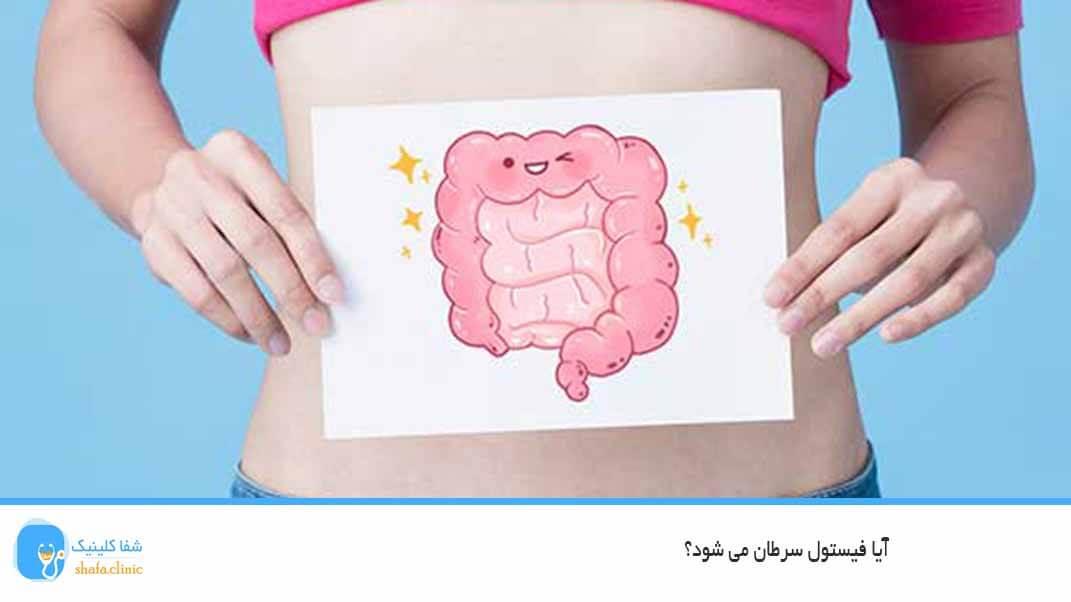 آیا فیستول سرطان می شود؟