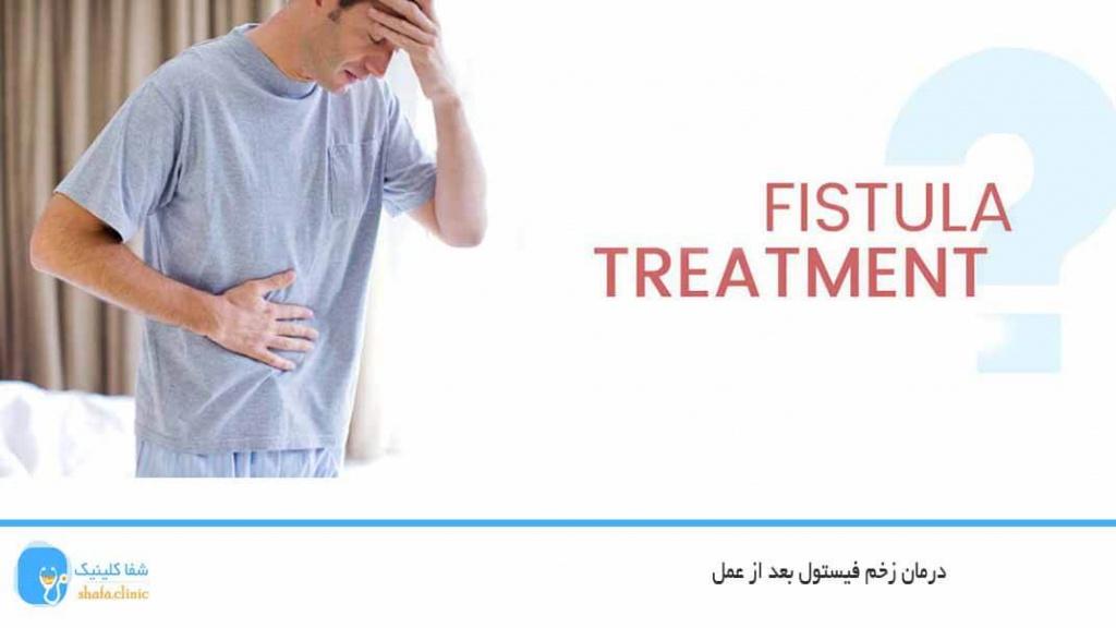 درمان زخم فیستول بعد از عمل